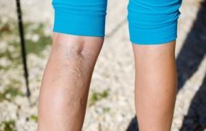 Лечение и профилактика варикоза на ногах: как избежать осложнений