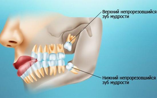 Зуб мудрости: польза или вред?