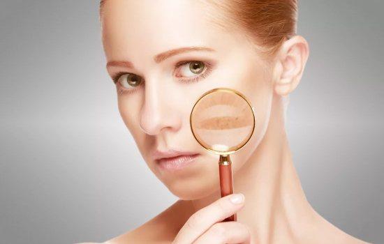 Как убрать пигментные пятна на лице с помощью салонных и домашних методов. Рецепты масок: чем убрать пигментные пятна на лице