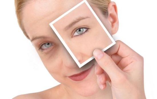 Как быстро свести синяк? Какие эффективные меры существуют, чтобы быстро свести синяк на лице или на теле