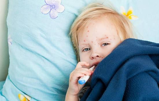 Ветрянка у детей — лечение в домашних условиях. Общие принципы лечения ветрянки у детей в домашних условиях