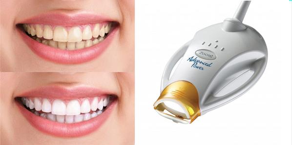 Профессиональное отбеливание зубов Zoom